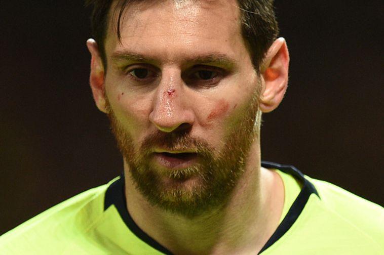צפו בתמונות: פניו של מסי התנפחו לאחר תיקול פראי של סמולינג
